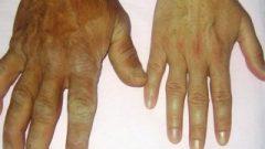 Akromegali hastalığı nedir