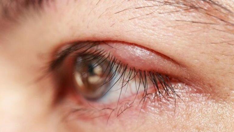 Göz İltihabı, Üveit Hakkında Bilmeniz Gerekenler