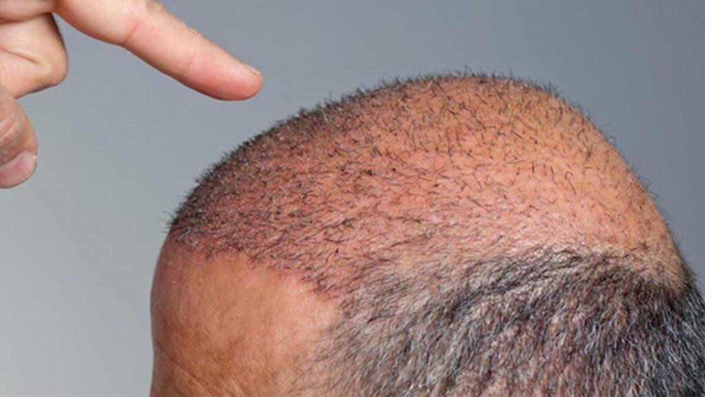 Saç Ekimi Sonrası Beslenmeye Dikkat