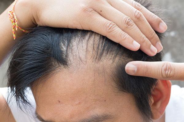 Saç Ekimi Sonrası Şok Dökülme Neden Olur? Nasıl Engellenir?